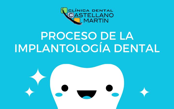 Proceso de la implantología dental